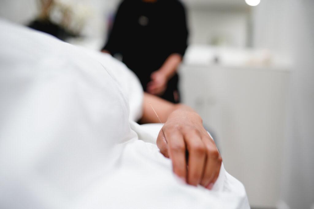 Acupunctuur afbeelding hand